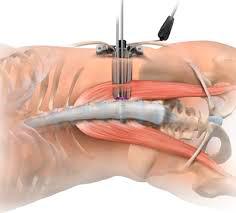 Cirugía de columna mínimamente invasiva