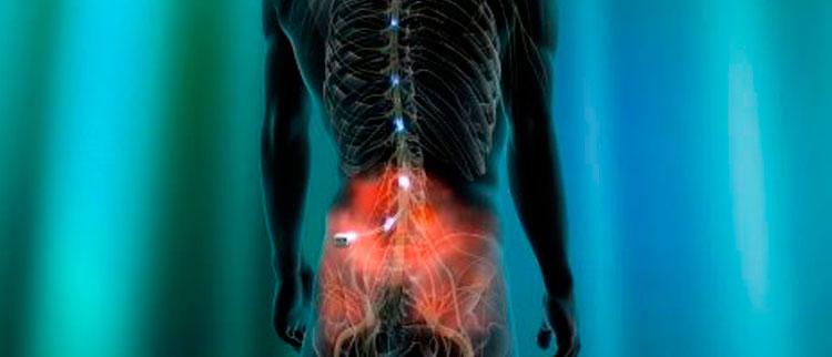 Técnicas mínimamente invasivas qué ofrecemos para el tratamiento del dolor crónico o agudo a nivel de la columna (espalda)
